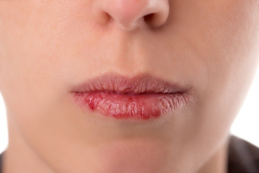 person with chapped and wounded lips